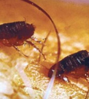Are fleas in Orange County California? You bet!